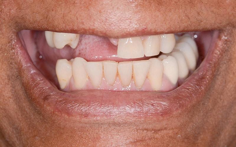 ArtLab Dentistry patient before dental implant tooth restoration