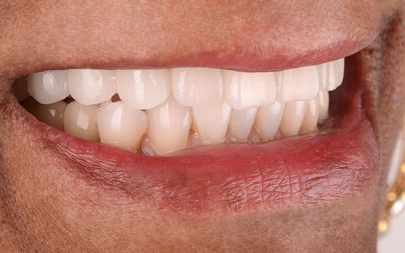ArtLab Dentistry patient after dental implant restoration treatment