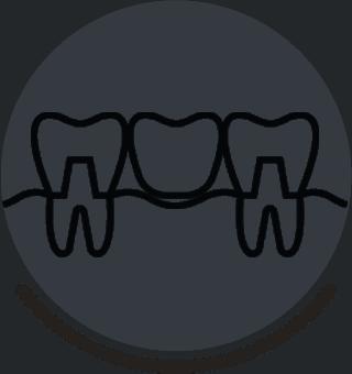 Alternatives To Dentures - Dentist Brentwood