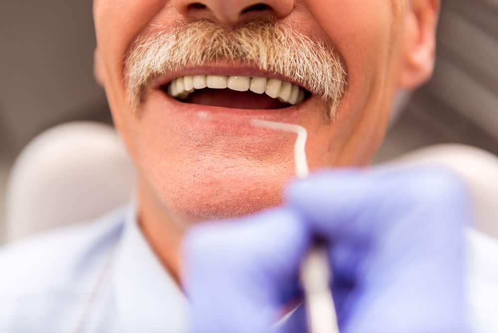 Affordable Dentures by ArtLab Dentistry