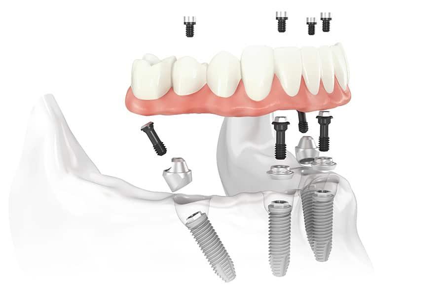 Illustration of All-On-4 Dental Implants