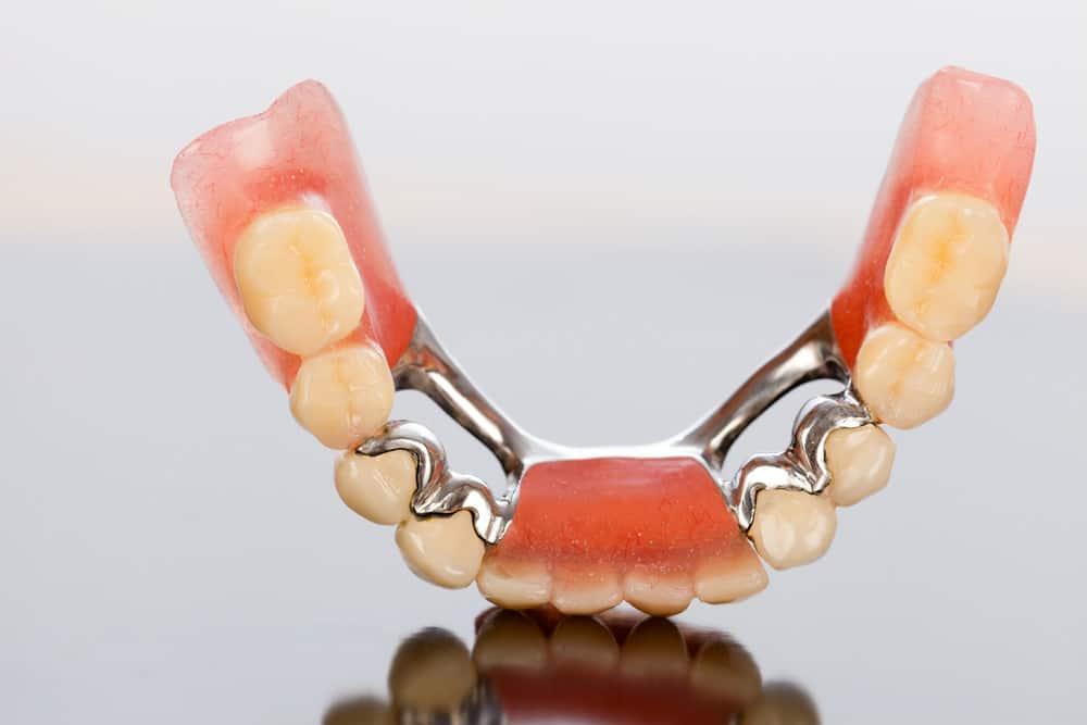 Bridge or Cantilever Dentures