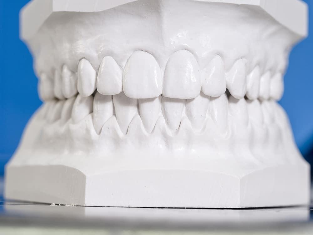Denture plaster case - best dentist in brentwood