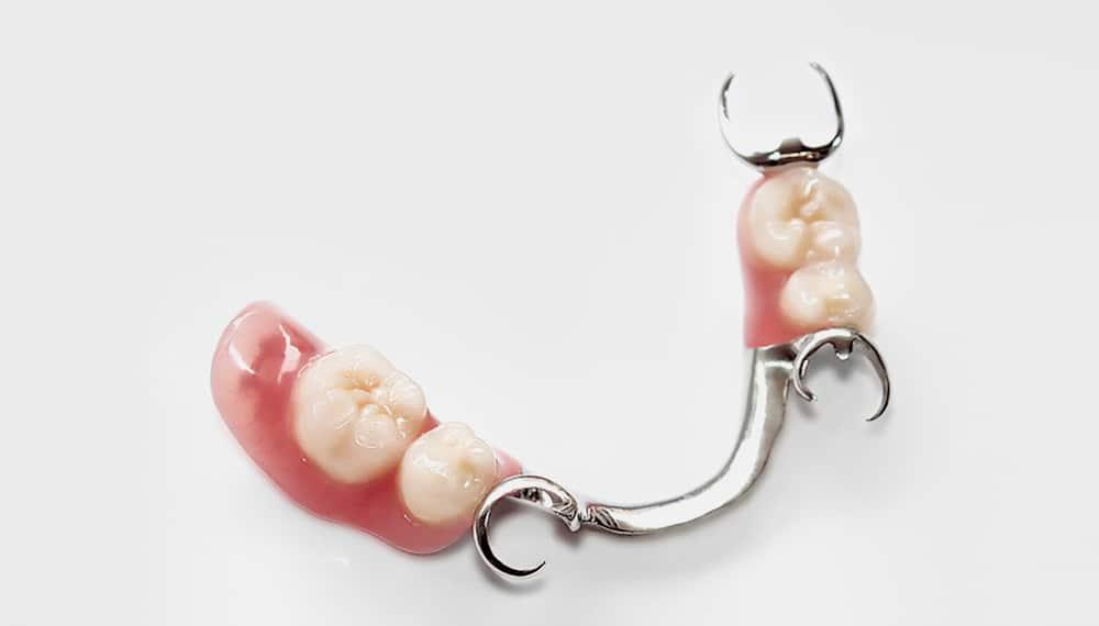 Partial Dentures - Brentwood best dentures