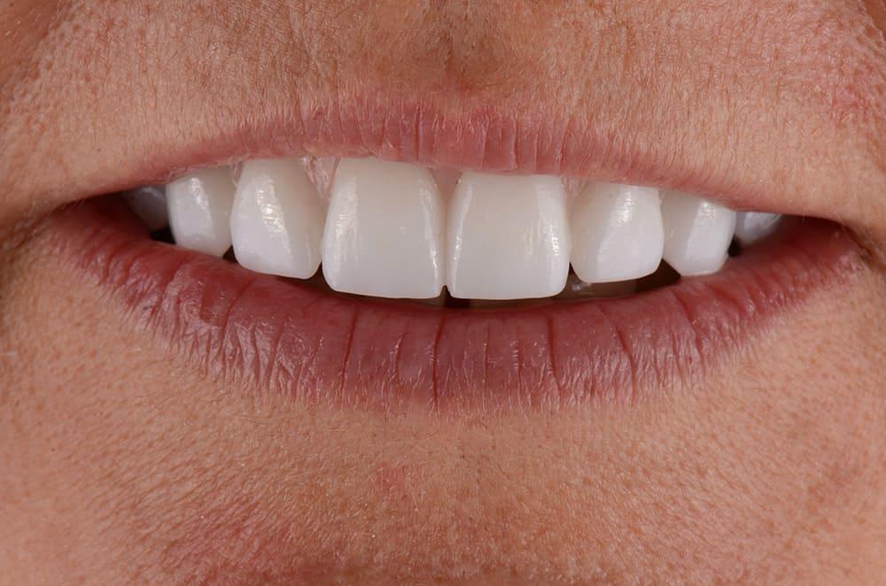 Upper jaw all-on-4 restoration for ArtLab Dentistry patient.