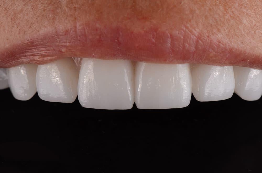 ArtLab Dentistry patient smile after treatment.