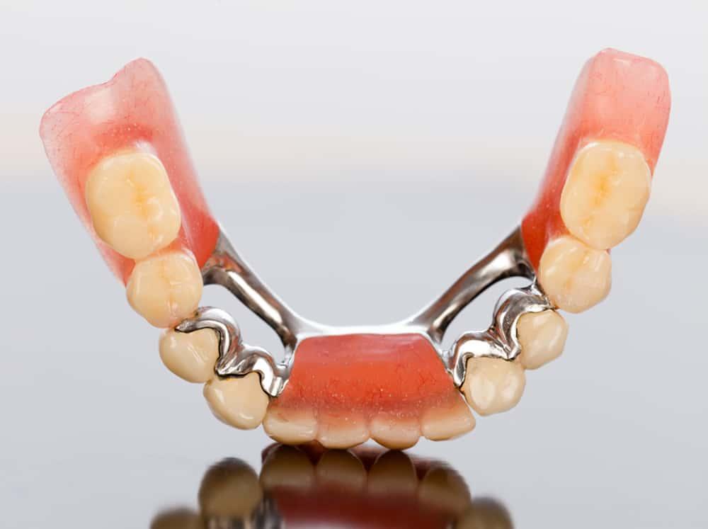 Dental Bridges - Brentwood Prosthodontist