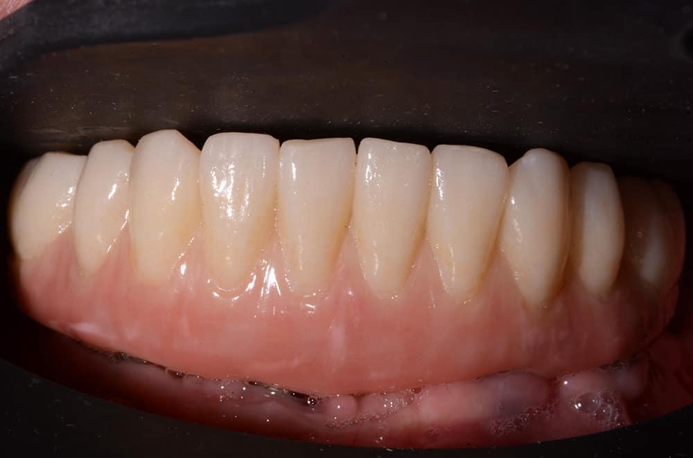 Lower jaw teeth installed