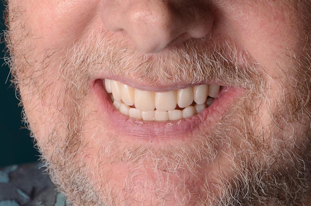 Vincent smile after all on 4 dental implant treatment