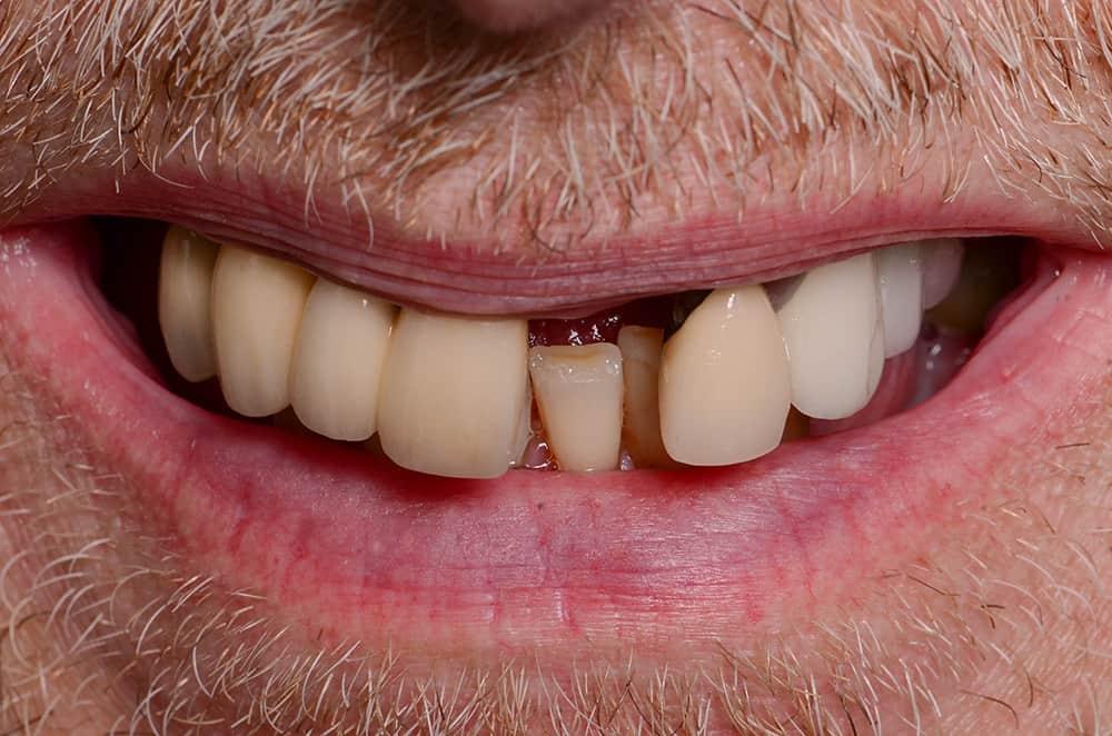Patient smile before dental implants