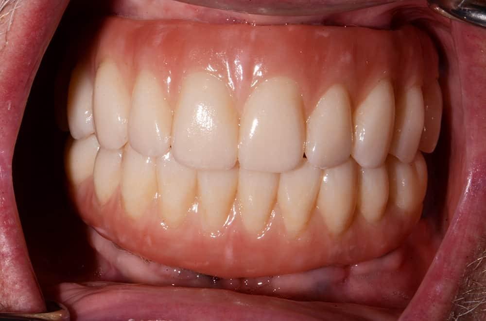 All-on-4 dental implants teeth installed