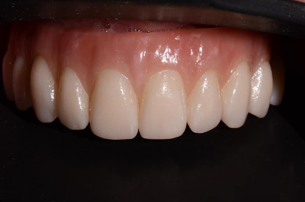 Upper jaw teeth all on 4 dental implants