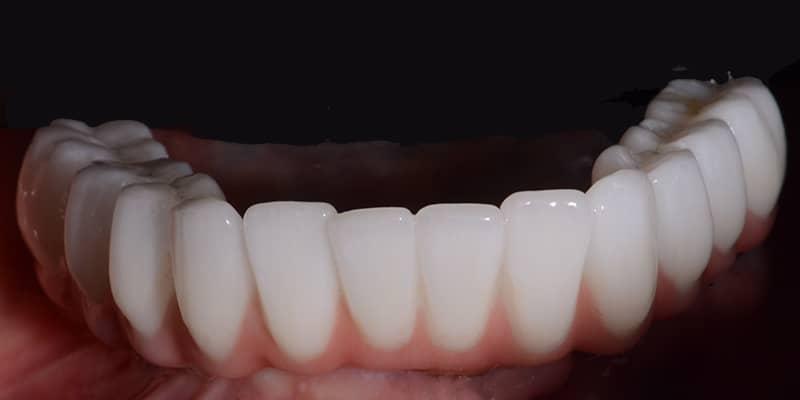 Mary-lower-teeth-after.jpg