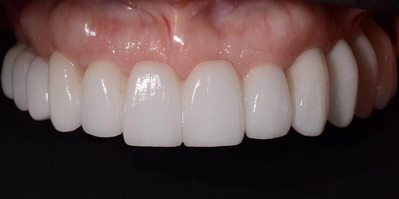 mary-upper-teeth-after-copy.jpg
